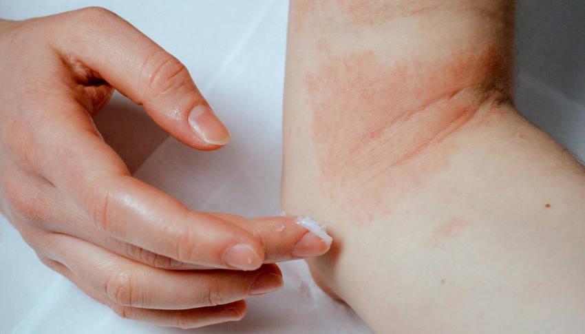 dermatitis problems